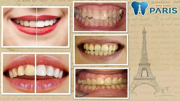 Những trường hợp có thể tẩy trắng răng laser whitemax