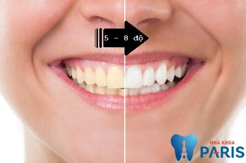 Răng bị vàng từ bên trong có thể trắng đến 8 độ