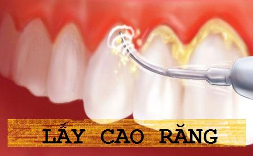 """5 cách làm hết mảng bám đen trên răng""""Tại Nhà"""" Đơn Giản & Hiệu Quả 6"""