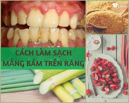 """5 cách làm sạch mảng bám trên răng """"Tại Nhà"""" Đơn Giản Hiệu Quả 1"""
