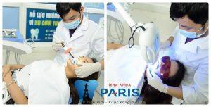 Tẩy trắng răng và tác hại KHÔN LƯỜNG với sức khỏe 2