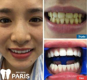 Tẩy trắng răng và tác hại KHÔN LƯỜNG với sức khỏe 3