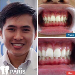 Tẩy trắng răng và tác hại KHÔN LƯỜNG với sức khỏe 5