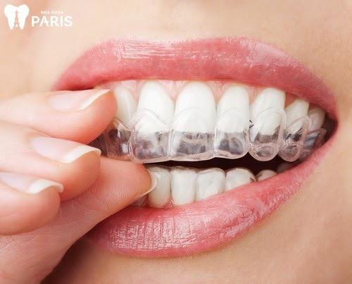 Khách hàng được thiết kế máng nhựa vừa im với cung hàm