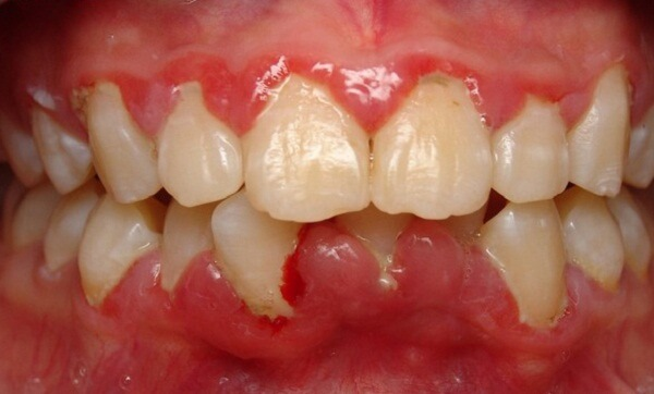 Cảnh báo: Nguy cơ tiềm ẩn từ việc tẩy trắng răng bằng than! 2