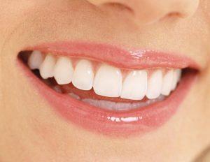 Công nghệ tẩy trắng răng tốt nhất