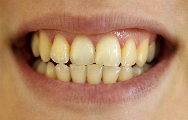 Tẩy trắng răng giá bao nhiêu tiền là chuẩn? Bảng giá SALE OFF 30% 3