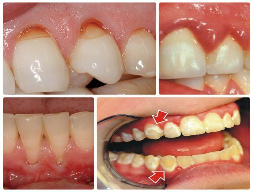Có hay không các cách tẩy trắng răng cấp tốc tại nhà? 2