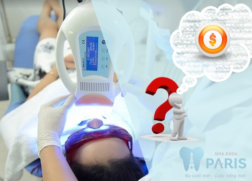 Giá tẩy trắng răng bằng công nghệ led bao nhiêu tiền là chuẩn