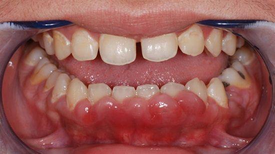 Miếng dán trắng răng giá bao nhiêu tiền? Bảng giá Chuẩn & Rẻ nhất 2