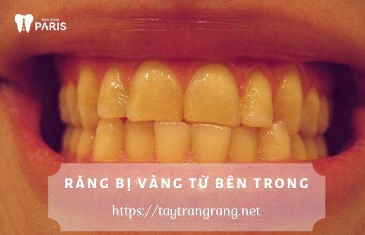 Răng vằng từ bên trong có thể làm trắng được không?