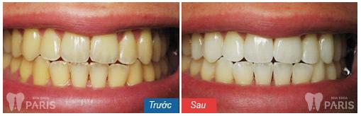 10 Lưu ý sau khi tẩy trắng răng QUAN TRỌNG để làm răng trắng sáng 5