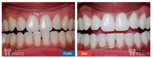10 Lưu ý sau khi tẩy trắng răng QUAN TRỌNG để làm răng trắng sáng 4