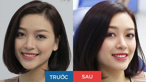 Hình ảnh khách hàng trước và sau khi làm trắng răng bằng laser WhiteMax