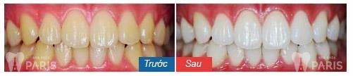 Thông tin từ A - Z về kem tẩy trắng răng tại nhà 5