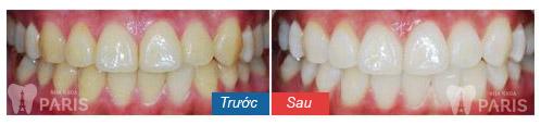 Thông tin từ A - Z về kem tẩy trắng răng tại nhà 7