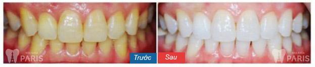 """Các phương pháp tẩy trắng răng an toàn """"Tại Nhà"""" hiệu quả sau 5 phút 7"""