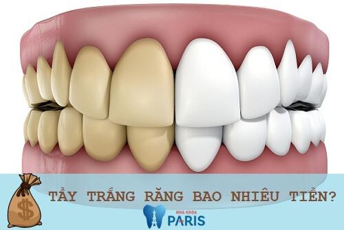 Chi phí tẩy trắng răng giá bao nhiêu tiền? [Bảng giá CHUẨN 2018] 1