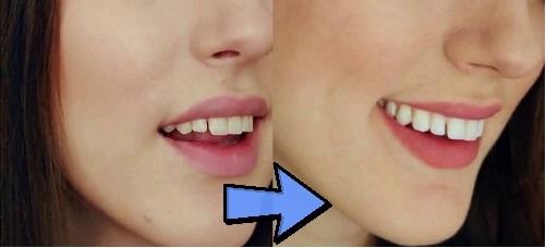 Lưu ý trước khi sử dụng miếng dán trắng răng Crest hiện nay 2