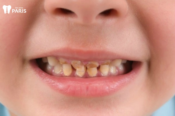 Răng sữa bị ố vàng
