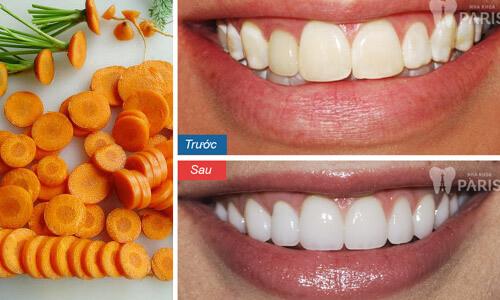 Cách làm trắng răng bằng cà rốt cực hiệu quả tại nhà 2