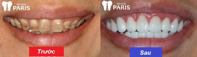 Bọc răng sứ cho răng nhiễm kháng sinh nặng