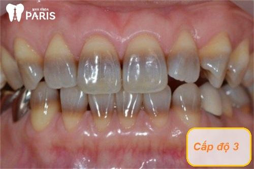 Răng bị nhiễm màu kháng sinh Tetracycline cấp độ 3