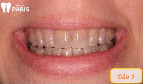 Răng bị nhiễm màu kháng sinh Tetracycline cấp độ 1