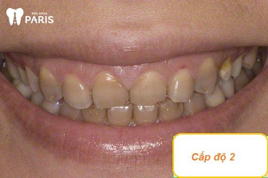 Răng bị nhiễm màu kháng sinh Tetracycline cấp độ 2