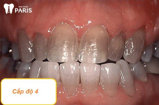 Răng bị nhiễm màu kháng sinh Tetracycline cấp độ 4