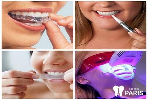 Tẩy trắng răng mất bao lâu tùy thuộc vào phương pháp tẩy trắng bạn chọn