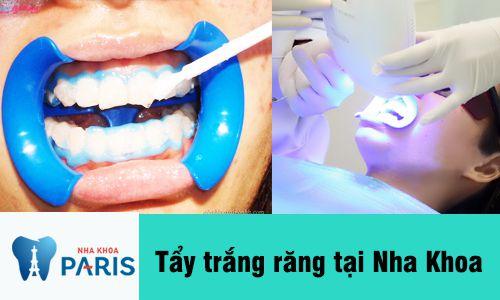 Tẩy trắng răng có đau không? Giải đáp từ chuyên gia tư vấn 2