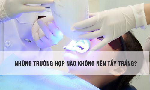 Tẩy trắng răng có tốt không? Giải Đáp chi tiết từ chuyên gia 3