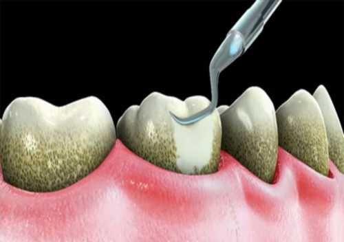 Miệng hôi thối – Nguyên nhân và cách trị hôi miệng TRIỆT ĐỂ là gì?