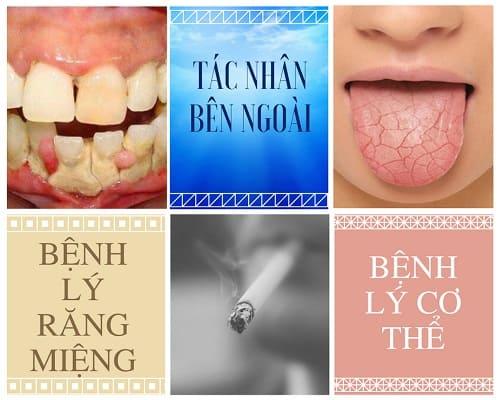 Miệng hôi thối – Nguyên nhân và cách trị hôi miệng TRIỆT ĐỂ là gì? 1
