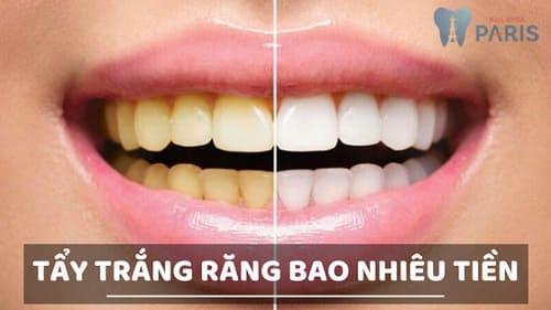 Chi phí tẩy trắng răng giá bao nhiêu tiền? [Bảng giá Ưu Đãi 30%] 1