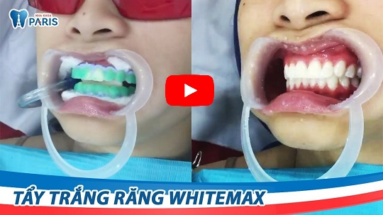 Công nghệ tẩy trắng răng WhiteMax giúp phòng tránh răng ê buốt sau khi tẩy