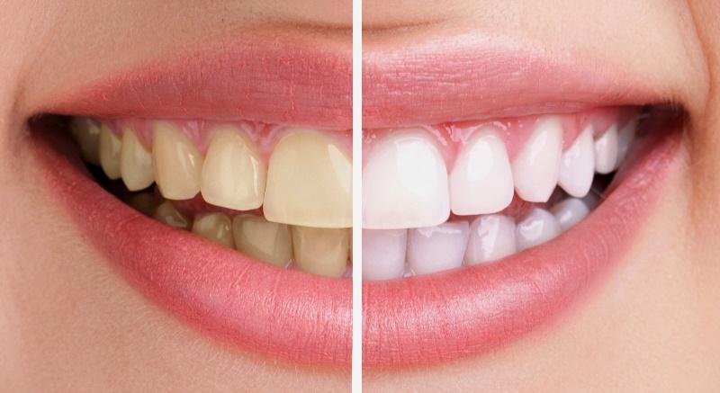 Tẩy trắng răng có đau không với 2 phương pháp TẠI NHÀ & NHA KHOA 1