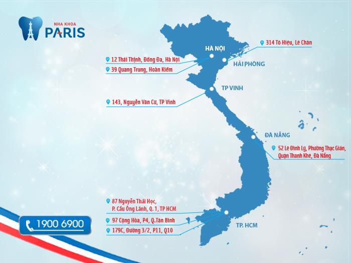 Trung tâm nha khoa Paris trải rộng khắp cả nước.