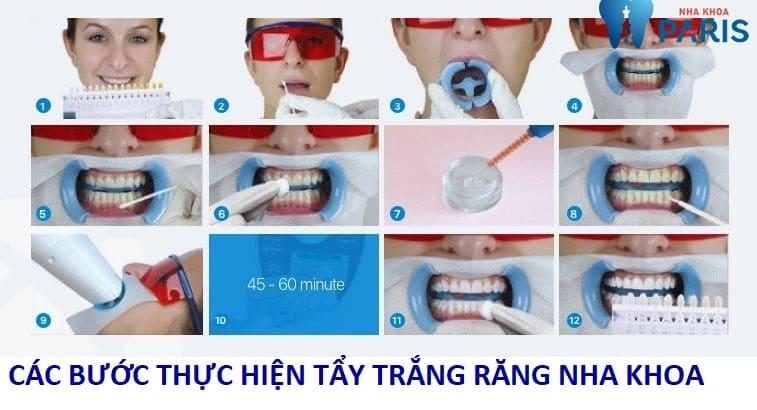 Tẩy trắng răng nha khoa AN TOÀN & HIỆU QUẢ chi sau 9 bước 1