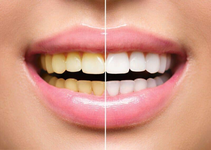 Hiệu quả của công nghệ tẩy trắng răng sẽ khác nhau vời từng trường hợp cụ thể