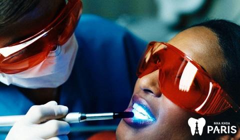 Phương pháp tẩy trắng răng bằng đèn Plasma có hại không và nhược điểm