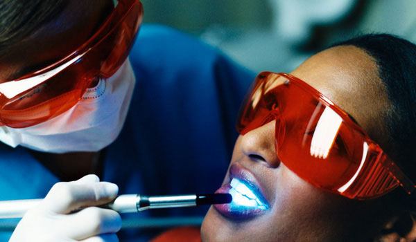 [Tư vấn] Tẩy trắng răng bằng đèn plasma có hại không? 3