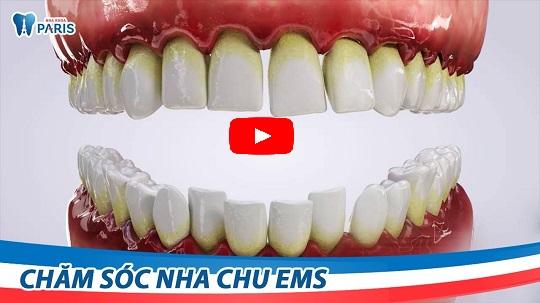 4 Yếu tố quyết định cạo vôi răng có ĐAU không bạn cần LƯU Ý 6