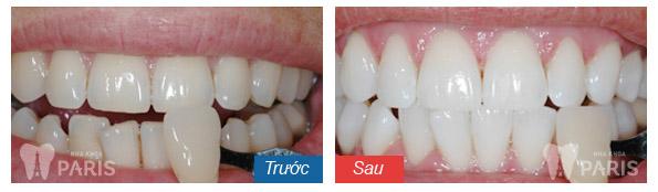 Cách khắc phục ê buốt răng sau khi tẩy trắng tại nha khoa