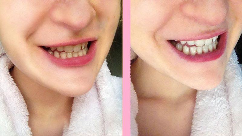 Miếng dán trắng răng Crest đem lại hiệu quả nhanh chóng