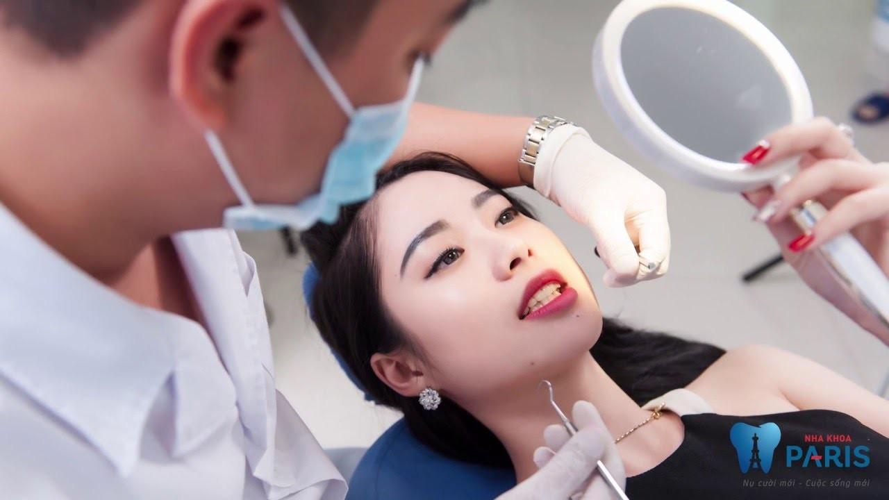 Từ bỏ miếng dán trắng răng crest và nên làm trắng răng chuyên nghiệp tại nha khoa