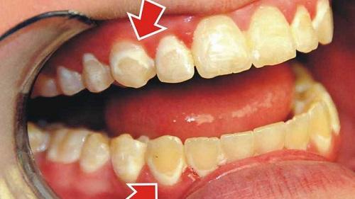 Cách sử dụng gel tẩy trắng răng Philips Zoom bạn cần LƯU Ý 2