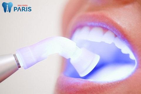 Tẩy trắng răng có tốt không | Tẩy trắng răng WhiteMax