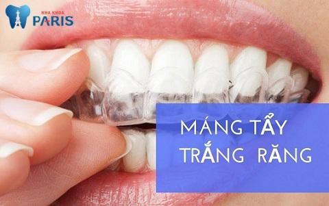 Tẩy trắng răng có tốt không vớ máng tẩy trắng tại nhà